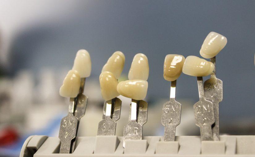 Śliczne zdrowe zęby także powalający prześliczny uśmiech to powód do zadowolenia.